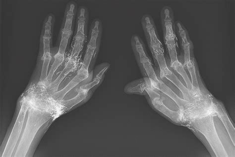 Bizarre X-ray shows woman has pieces of gold in her hands